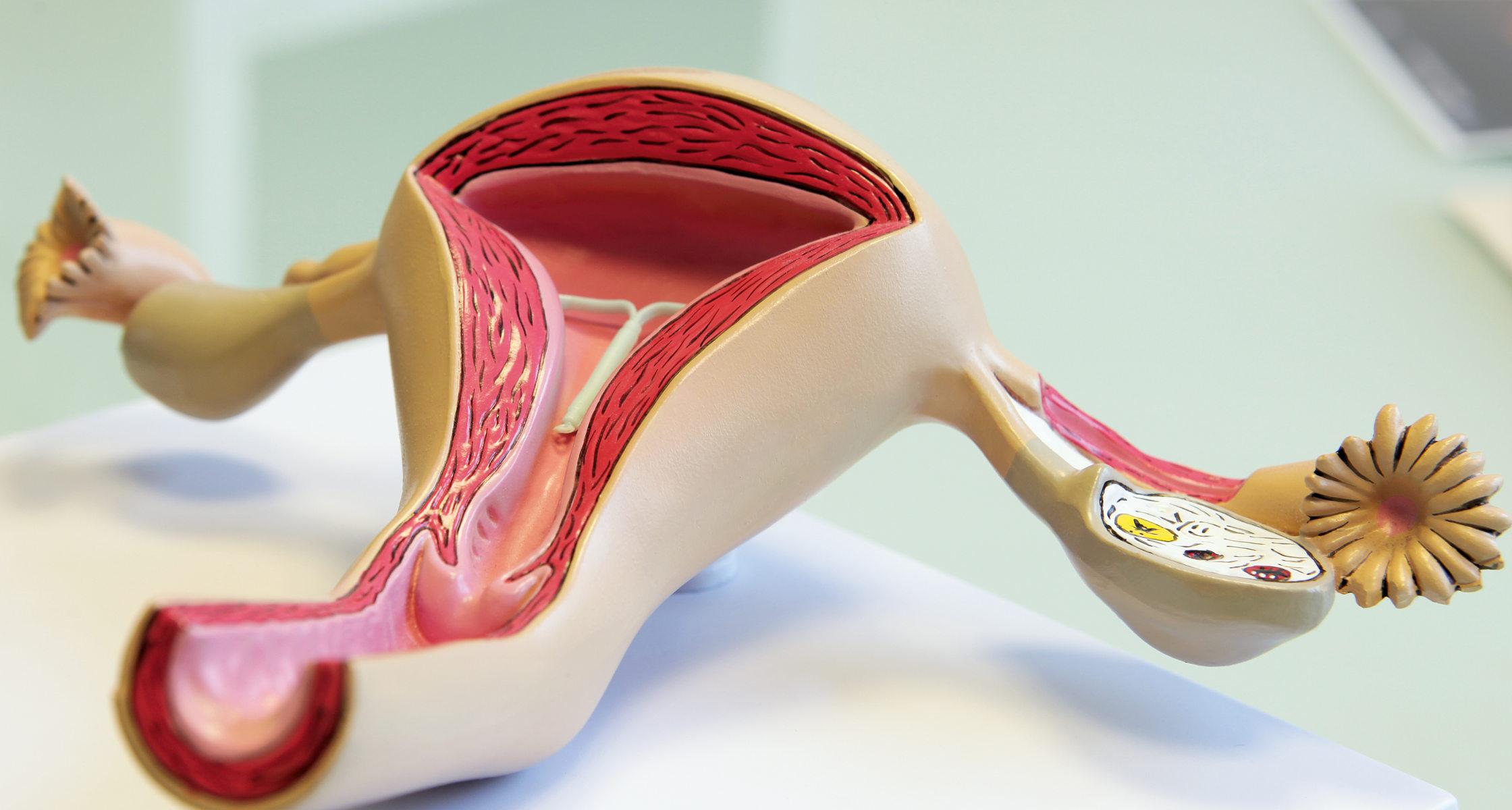 Hormonspirale mirena kosten