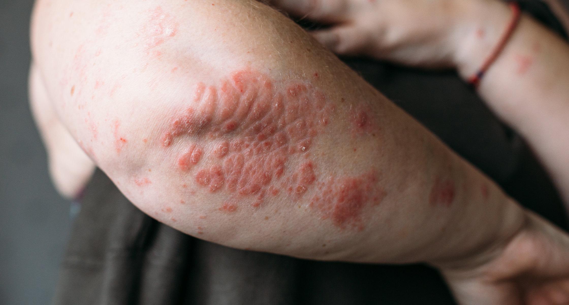 bilder på psoriasis