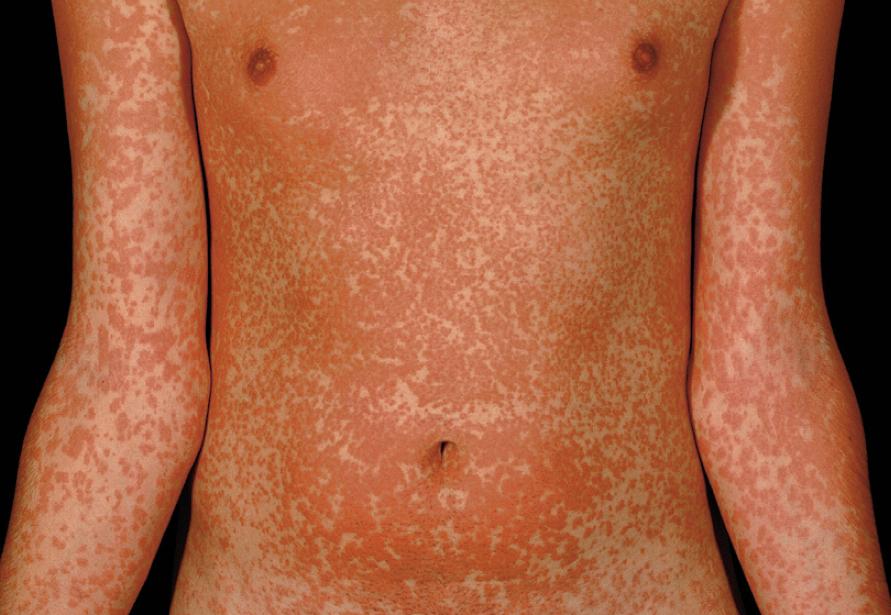 allergische reaktion antibiotikum