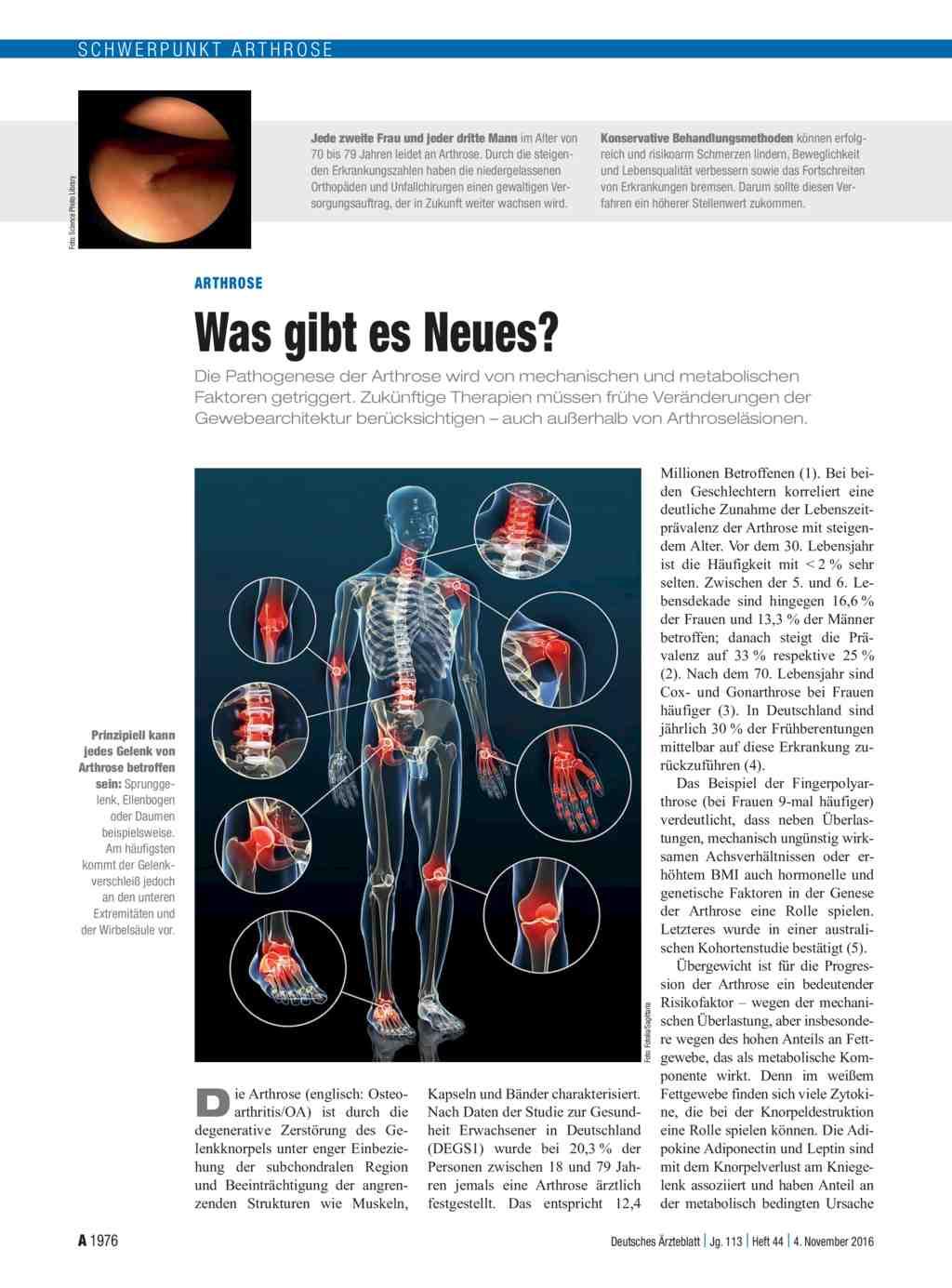 Gelenkentzündungen: eine Krankheit - viele Ursachen
