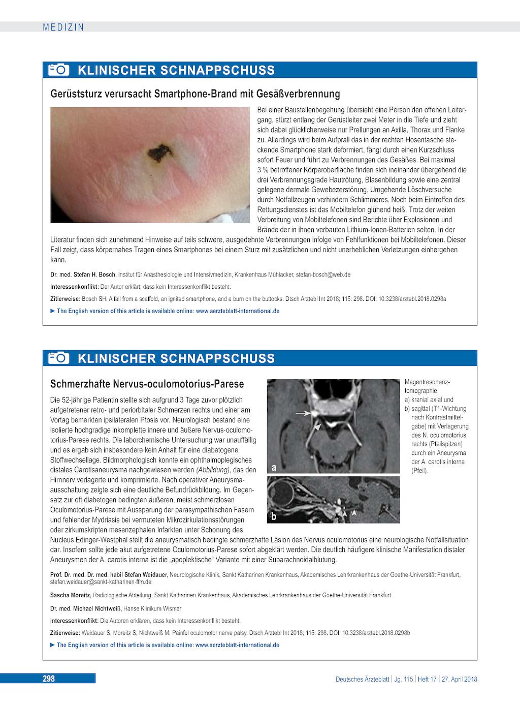 diabetes oculomotorius parese